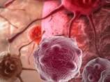 Болезни, лечение и профилактика. Аденомы