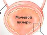 Болезни, лечение и профилактика. Инфекция мочевого тракта