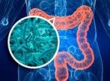 Детоксикация кишечника. Часть 2