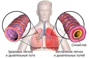 aspiratsionnaya-pnevmoniya