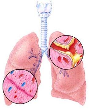 bronchitis-1-