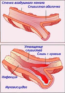 mukovistsidoz-1