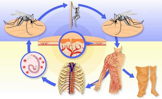 Лечение филяриатоза