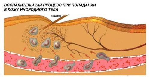 Воспаление процесс кожи